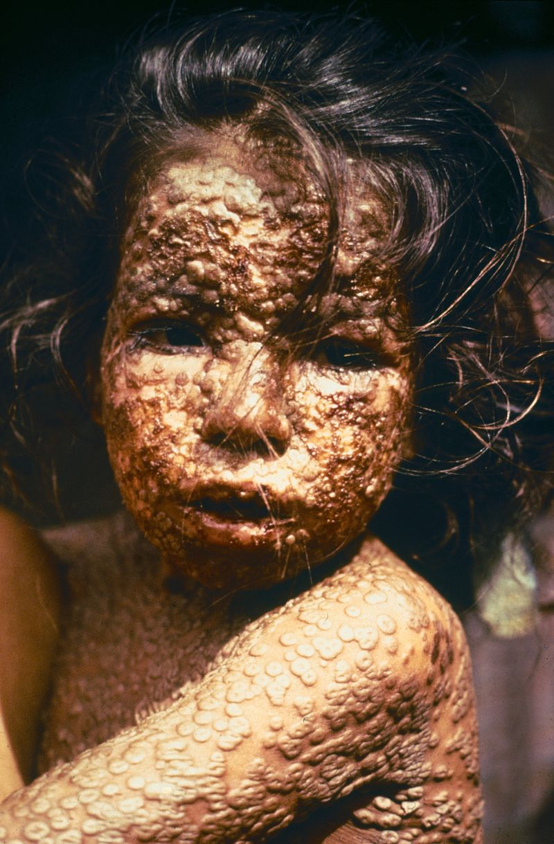 Young girl in Bangladesh was infected with smallpox in 1973. Photo Credit: CDC/James Hicks