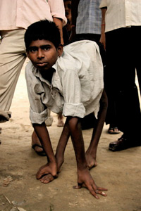 An Indian boy's legs are shrunken from paralysis caused by polio WHO/T. Moran